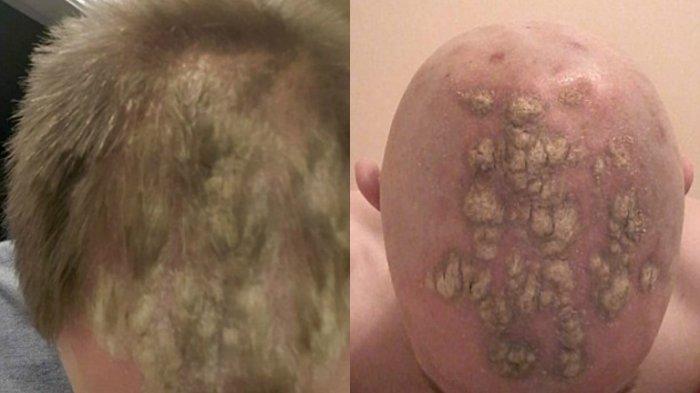 Waduh! Kepala Pria Ini Botak dan Penuh Luka Setelah Menggunakan Gel Rambut Merek Ini