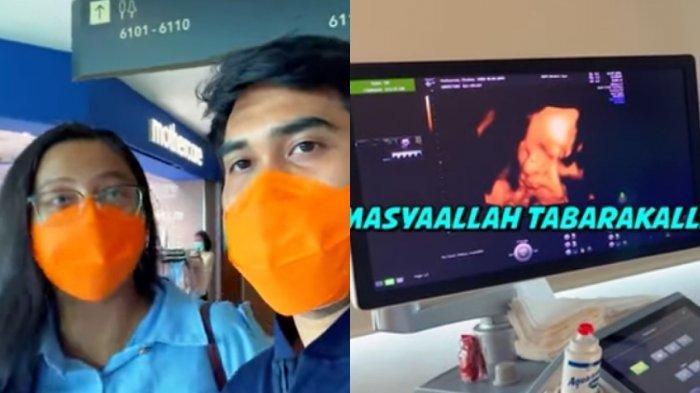 Penampakan Wajah Sepupu Kiano Baim Wong Terekam di USG, Chelzea dan Nail Soroti Hidungnya