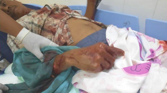 Dua Korban Pembacokan di Kotabaru Menjalani Operasi, Jari Marhat yang Putus Disambung