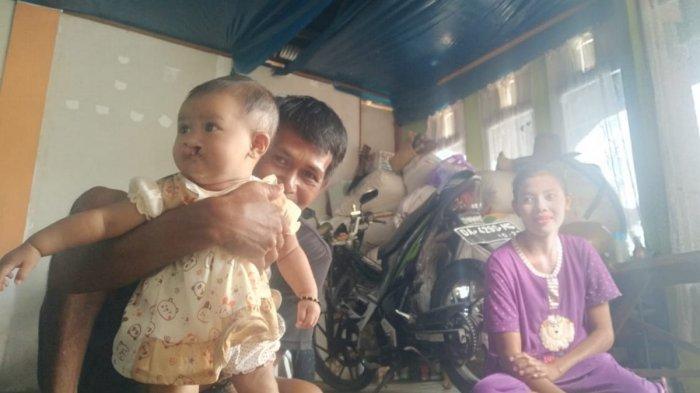 Bayi Bibir Sumbing Asal Jejangkit Batola Siap Jalani Operasi, Bupati Seranhkan Bantuan Rp 10 Juta