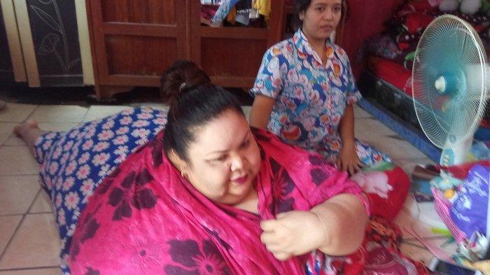 Titi Wati wanita obesitas berbobot 350 kg
