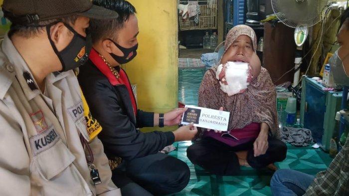 Community Ershi Polresta Banjarmasin Peduli, Beri Bantuan ke Penyintas Kanker Rahang di Kuin Cerucuk