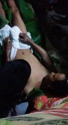 Korban Gigitan Ular King Cobra, Rizki Ahmad Disebut Hidup dan Mengalami Mati Suri, Ini Faktanya
