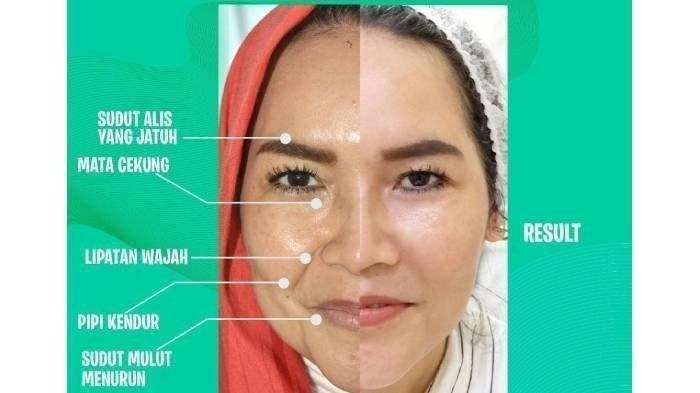 Foto before after Umi Kalsum ibunda Ayu Ting Ting setelah botox hingga tanam benang