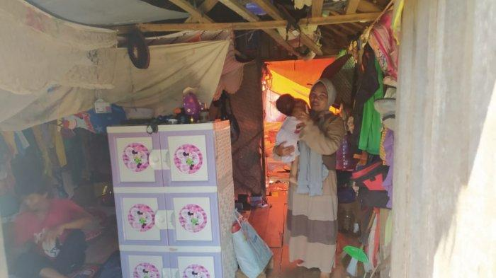 Yeni Febriansyah (2), balita  asal Sesa Patih Selera, Kecamatan Belawang, Kabupaten Batola, didiagnosa menderita tumor jinak sejak lahir.