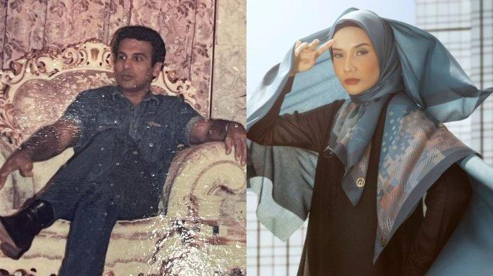Zaskia Sungkar Posting Foto Penampilan Kala Belum Berhijab Bareng Mark Sungkar, Tak Ada Irwansyah