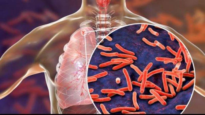 Tak Hanya Covid-19, Virus Ini Juga Merebak di Kabupaten Lebak, Puluhan Warga Tewas