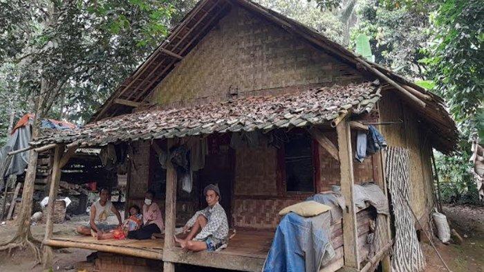 Penjelasan Kadinkes Lebak soal Kondisi Anak di Desa Muncang Kopong yang Alami Gangguan Kesehatan
