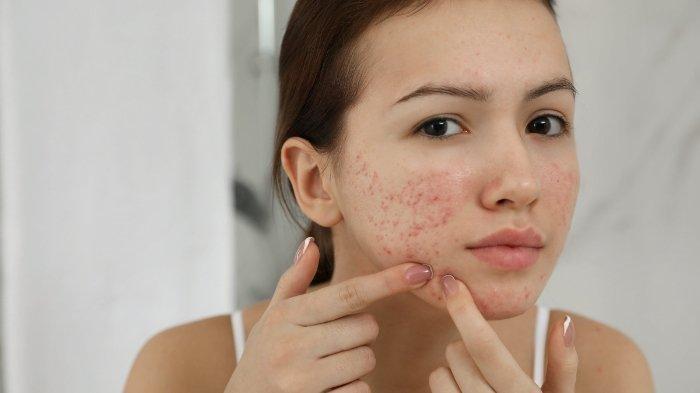 Punya Kulit Muka Berjerawat? Simak 6 Tahapan Pemakaian Skin Care Ini, Jangan Ada yang Terlewat!
