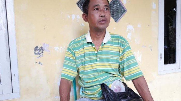 Kisah Pedagang Koran di Pandeglang Alami Tumor Usus, Kini Tak Bisa BAB Normal Hingga Sulit Bekerja