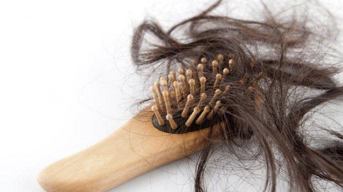 Tips untuk Atasi Rambut Rontok Bagi Wanita dan Pria, Dijamin Sehat Berkilau Setelah Lakukan Ini