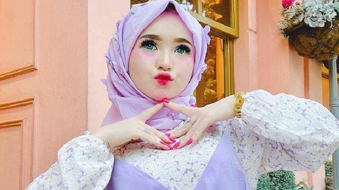 Biodata Herlin Kenza, Selebgram Aceh yang Diduga Memicu Kerumunan, Punya 9 Ajudan & Dijuluki Barbie