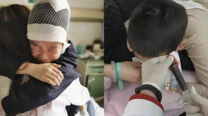 Bocah SD Dijambak Lalu Diseret oleh Gurunya di Sekolah, Kulit Kepala Bocah Ini Sampai Terkelupas