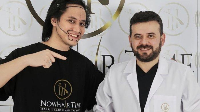 Kevin Aprilio Lakukan Transplantasi Rambut di Jidat, Ngaku Minder dengan Penampilannya