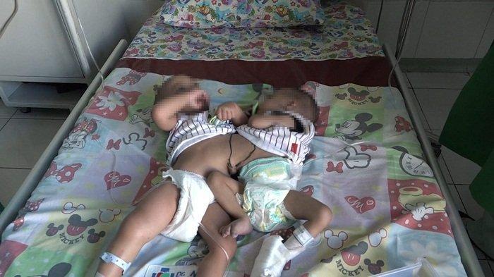 Bayi kembar siam Ba dan Br yang berhasil dipisahkan oleh tim dokter RSUD Dr Moewardi Solo, Rabu (21/4/2021).