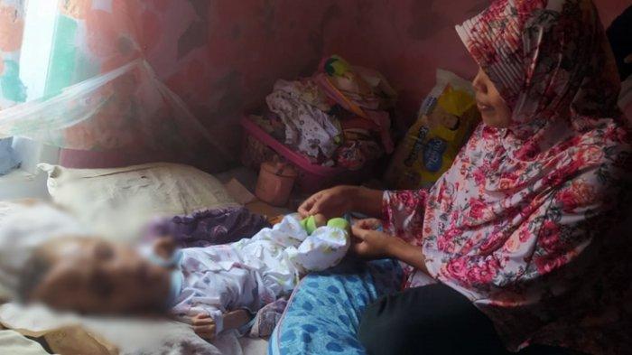 Kisah Bocah Penderita Hidrosefalus di Kebondalem Banjarnegara, Dwi Aryanto Juga Kekurangan Gizi