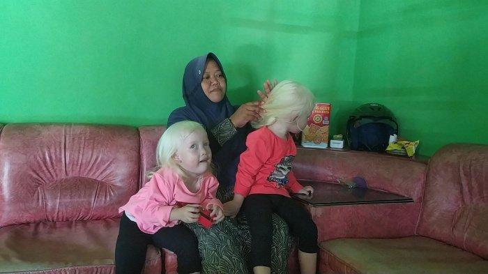 Kembar Albino di Wonogiri, Nadya dan Nadira Jadi Perhatian Warga saat Jalan-jalan