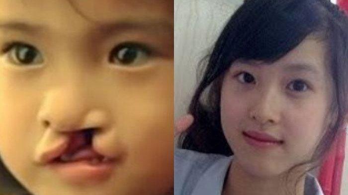Kisah Gadis Bibir Sumbing Dibuang Orang Tua Kandung, Setelah Dewasa Justru Cantik dan Sukses