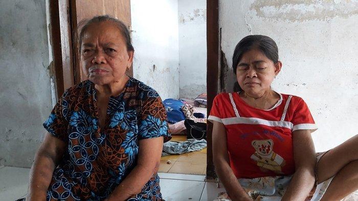 Kisah Kayem, Lansia di Kota Tegal Sudah Setahun Mengidap Kanker Payudara, Belum Dapat Penanganan