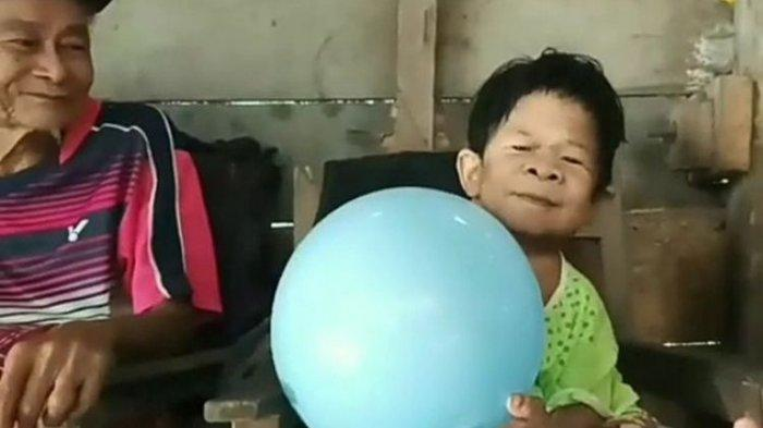 Alami Sindrom Peter Pan, Dua Kakak - Adik Usia 40-an Tahun Ini Bersikap Seperti Anak Kecil
