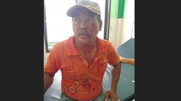Tukang Becak Berdarah-darah Dianiaya Anggota Ormas di Cilacap, Pelaku Kesal Lihat Korban Tak Puasa