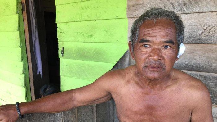 Tukang Parkir di Kabupaten Karimun Dijambret, Kalung Emas 15 Gram Raib, Telinganya Nyaris Putus