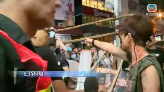 VIDEO Detik-detik Aktris Celine Ma Berdarah-darah Dipukuli Demonstran Hong Kong yang Makin Brutal