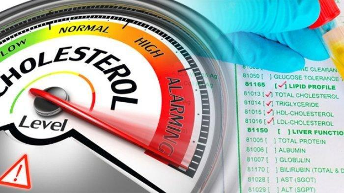 Simak Baik-baik! Ada 10 Cara Sederhana Ampuh Atasi Kolesterol Jahat, Apa Saja?