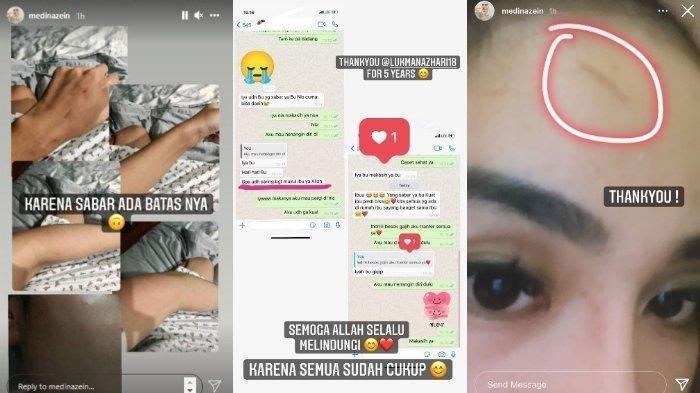 'Sudah Cukup', Curhat Medina Zein Menjadi Korban KDRT, Tubuh Lebam hingga Tangan Lecet: Thank You