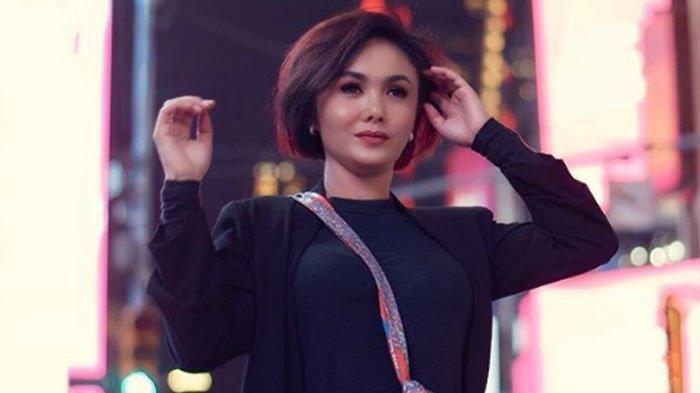 Yuni Shara Alami Body Shaming setelah Unggah Foto, Model '35 Cangkir Kopi' Membalas Elegan