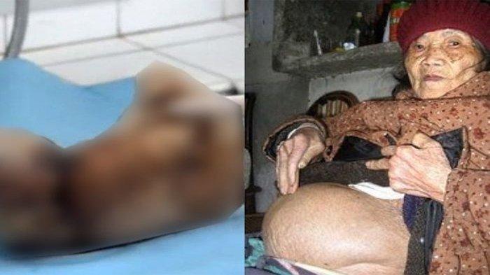 Hamil Selama 46 Tahun,Seperti Ini Wujud BayiSetelah Dilahirkan Wanita Ini