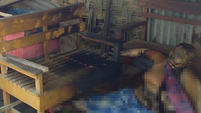 Inem Teriak Minta Tolong setelah Wajah dan Badannya Melepuh setelah Dibakar Anak Tirinya. Kondisi nek Inem yang mengalami luka bakar akibat dibakar oleh anak tirinya di belakang teras rumahnya yang berada di Dusun III Desa Sidomulyo, Kecamatan Pulau Bandring pada Selasa (25/6/2019)