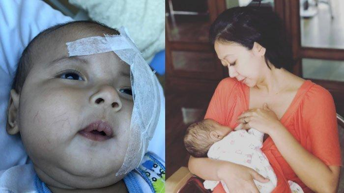 Ngeri Anak (Umur 2 Tahun) Asri Welas Tercebur Kolam Renang, Beruntung Cepat Dibawa ke Rumah Sakit