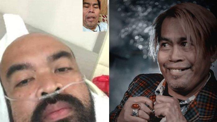 Komedian Peppy Sudah Seminggu Dirawat di Rumah Sakit Gegara Covid-19, Bopak Ungkap Kondisi Rekannya