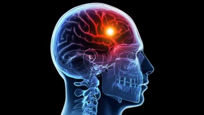 Cara Mencegah Pendarahan Otak, Termasuk Penyakit Berbahaya Ini Penyebab dan Gelajanya
