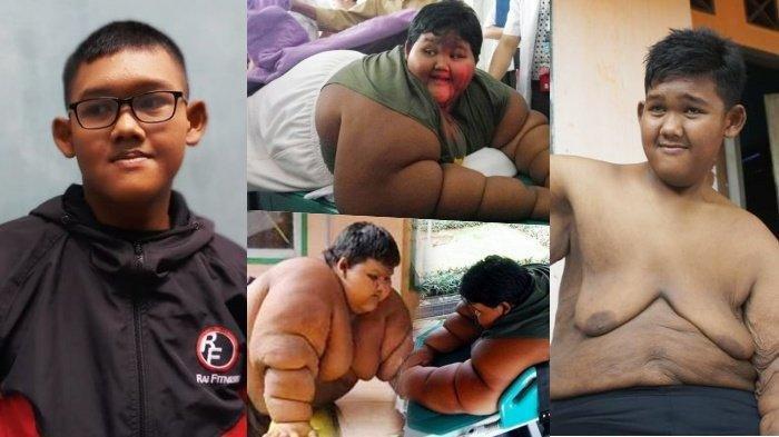 Ingat Arya Permana? Anak Tergemuk di Dunia Kini Sudah Remaja, Berat Badan Turun Drastis