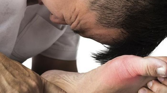 Hati-kati Kadar Asam Urat Tinggi Bisa Sebabkan Hiperurisemia, Apa Itu & Berbahayakah?