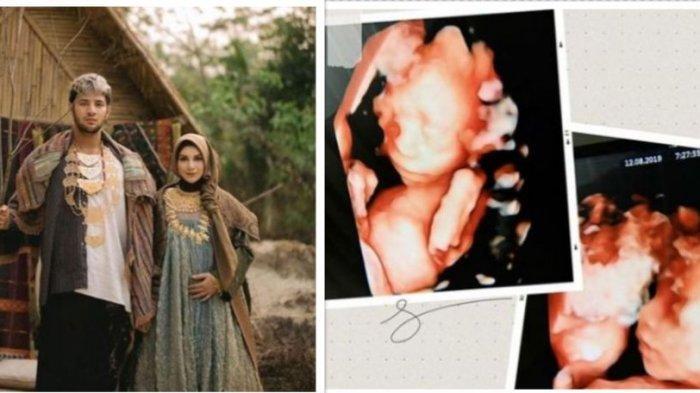 Fakta Kematian Bayi Kembar Irish Bella dan Ammar Zoni ,Sang Manager Tak Berani Ungkap. Kronologinya