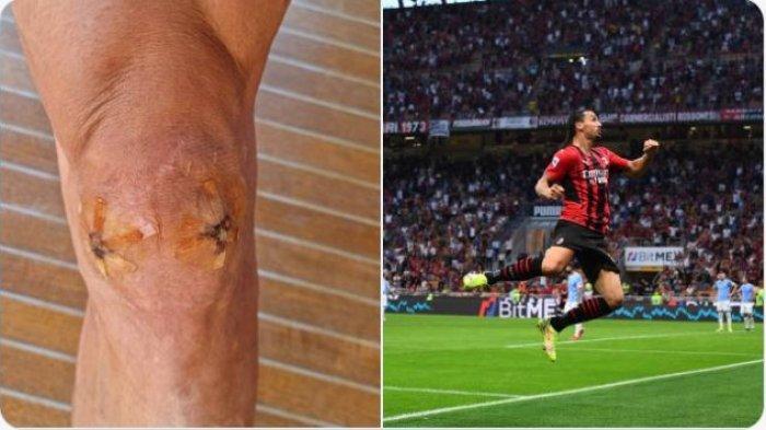 Berita AC Milan - Buktikan Ketajaman Cetak Gol ke Gawang Lazio, Ibrahimovic Pamerkan Cedera Lutut
