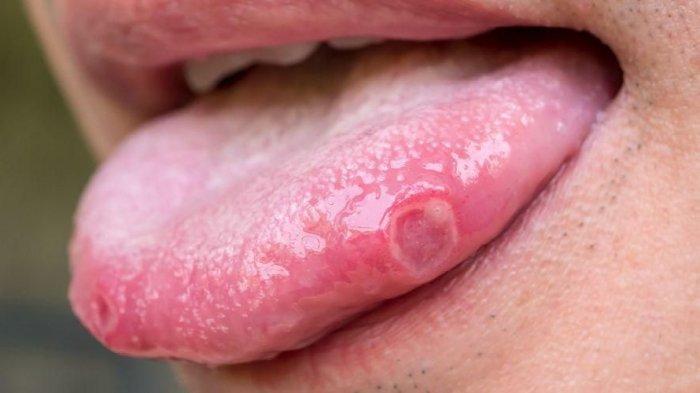 Hati-hati, Begini Cara Bedakan Sariawan Biasa dan Kanker Mulut yang Mematikan