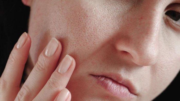 6 Cara Mengecilkan Pori-pori di Wajah, Cermat Memilih Skincare yang Paling Utama