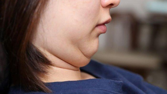 Biar Makin Pede, Coba Ikuti Tips untuk Hilangkan 'Double Chin' Berikut Ini