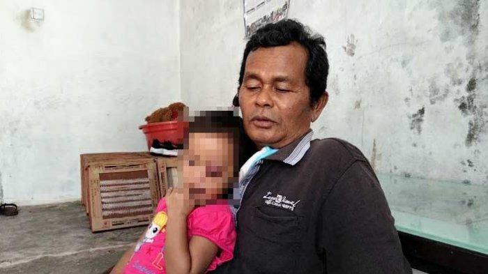 MALANG Nasib Fitri Aisyah, Balita di Tanjungpinang Derita Tumor di Mata