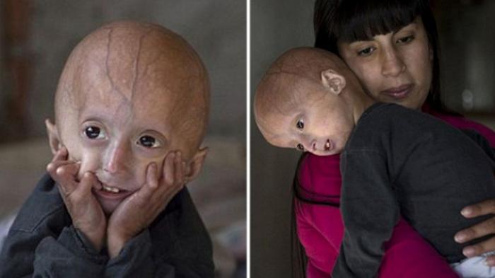 Franco Villavicencio mengidap kelainan genetik yang disebut sindrom progeria