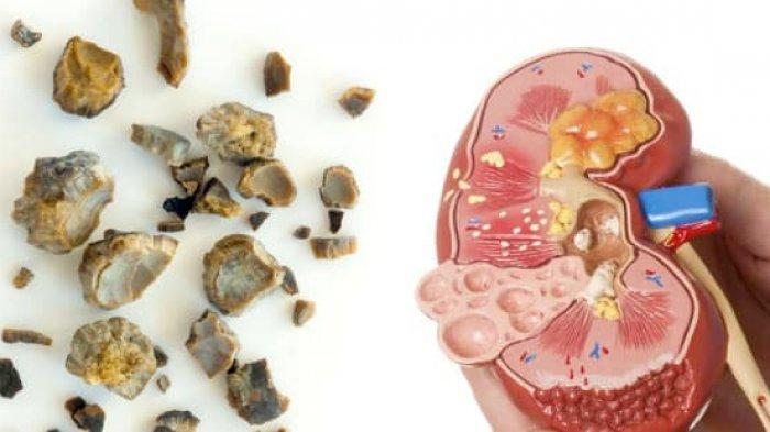 Dari Mana Batu Ginjal Muncul? Ternyata Ini 7 Penyebabnya, Bukan Sering Nahan Kencing