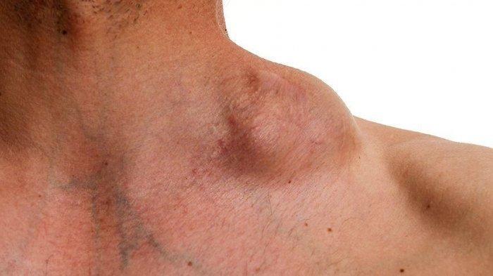 Apa Itu Limfoma? Sel Darah Putih Mengganas Sebabkan Kanker Langka Mematikan!