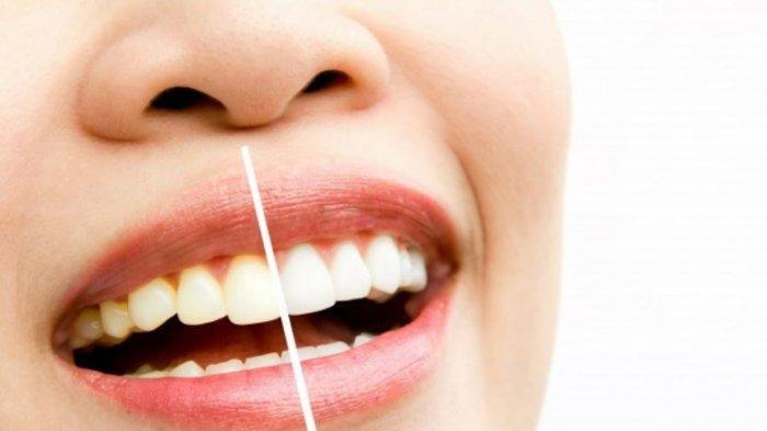 Cara Merawat Gigi Menjadi Putih Bersih, Cukup Gunakan Lemon dan Baking Soda, Lihat Perubahannya