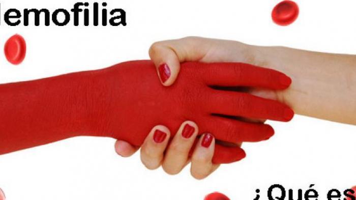 Apa Itu Hemofilia, Mutasi Genetik Sempat Disebut Penyakit Kerajaan