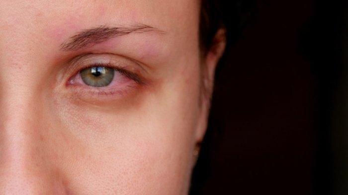 Mengenal Iridosiklitis, Penyakit Mata yang Disebabkan oleh Gigi Berlubang, Apa Saja Gejalanya?
