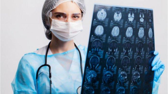 Termasuk Jenis Kanker Ganas, Kenali Gejala dan Diagnosis Kanker Otak Glioblastoma
